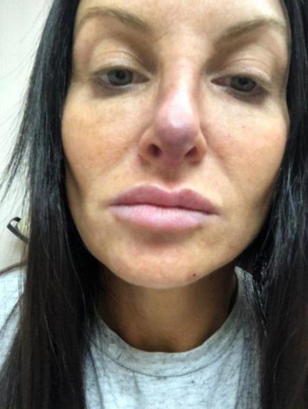 Cô đã gặp biến chứng sau khi phẫu thuật