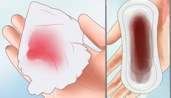 Xuất huyết âm đạo bất thường xuất phát từ nhiều bệnh lý khác nhau, nguy hiểm nhất là ung thư phụ khoa