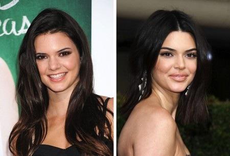 Kendall Jenner quả xứng danh là nàng mẫu đẹp ngay từ thuở ban đầu