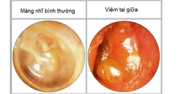 Bệnh lý viêm tai giữa