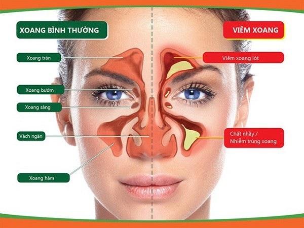 Đau nhức vùng mặt do viêm xoang