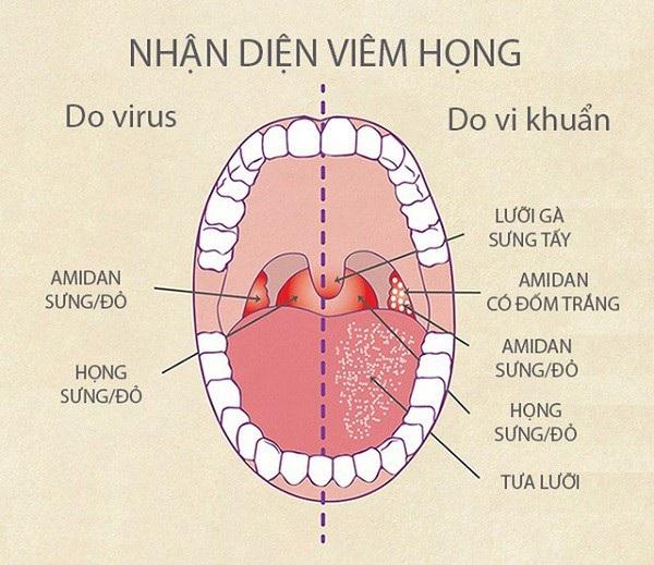 Nhận diện bệnh lý về viêm họng