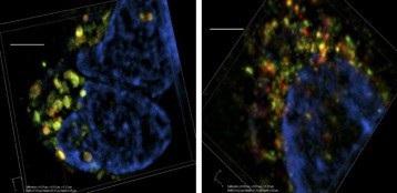 Các nhà khoa học phát hiện ra mục tiêu mới để ngăn chặn sự phát triển của ung thư - 1