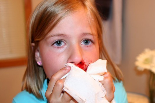 Trẻ bị chảy máu cam do rất nhiều lí do khác nhau