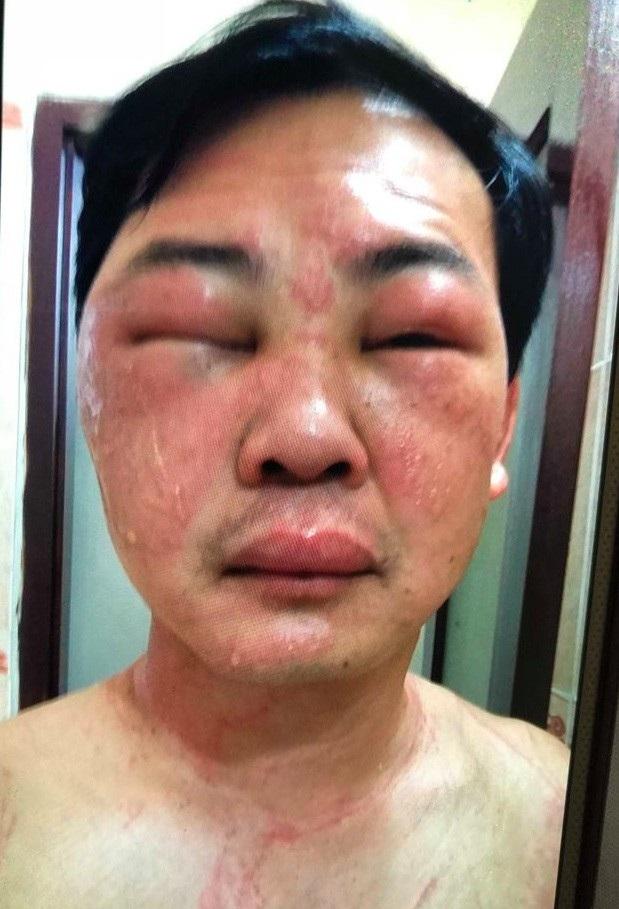Khuôn mặt bệnh nhân sưng vù sau ít phút bị sứa đốt.