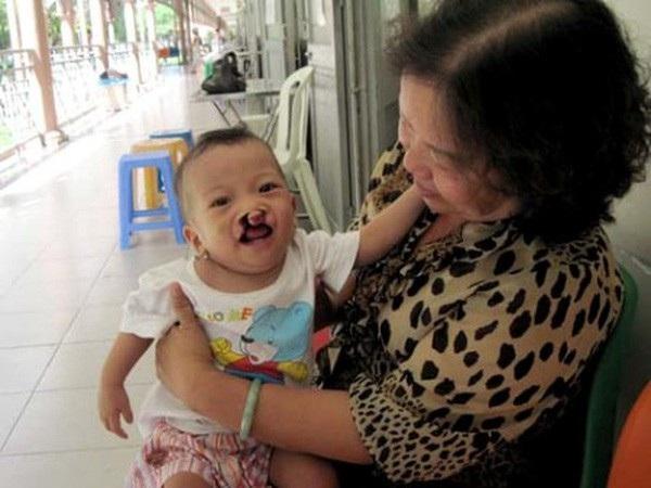 Tật sứt môi hàm ếch thường gặp ở trẻ chủ yếu do người mẹ thiếu a xít folic trước và trong thai kỳ