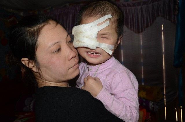 Nghẹn đắng tình cảnh của bé gái 3 tuổi mắc ung thư võng mạc - 12