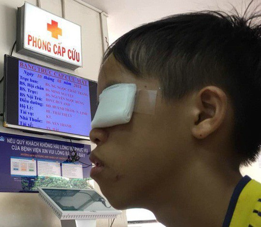 Bé trai dùng thuốc pháo ở đầu que diêm gây nổ bị hỏng mắt trái