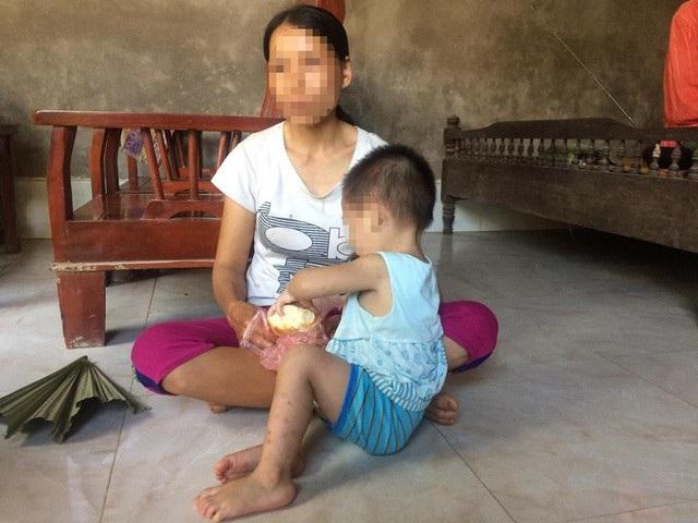 Em bé 18 tháng tuổi nhiễm HIV trong khi bố mẹ lại bình thường khiến các chuyên gia rất quan tâm tìm đường lây truyền bệnh của bé. Ảnh: Trần Thanh.