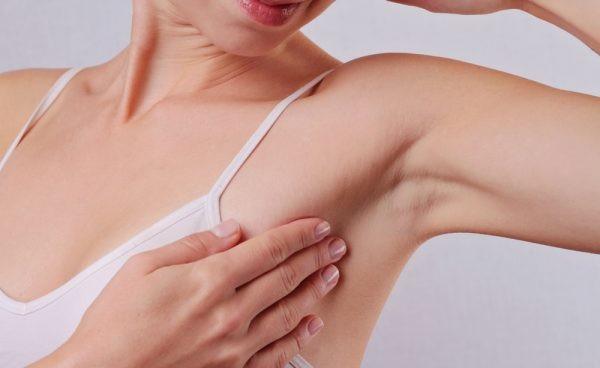 Hạch vùng nách có thể là dấu hiệu cảnh báo ung thư vú giai đoạn tiến triển