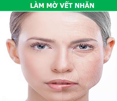 """Hạt mít: Thực phẩm ngăn ngừa bệnh tật bị người Việt """"bỏ quên"""" - 7"""