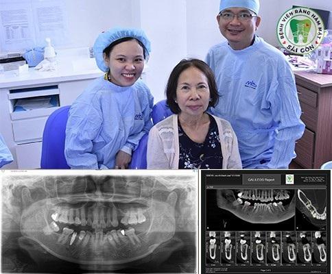 Cấy ghép Implant giúp phục hồi răng toàn diện, phục hồi cả chức năng nhai và thẩm mỹ, ngăn chăn tiêu xương.