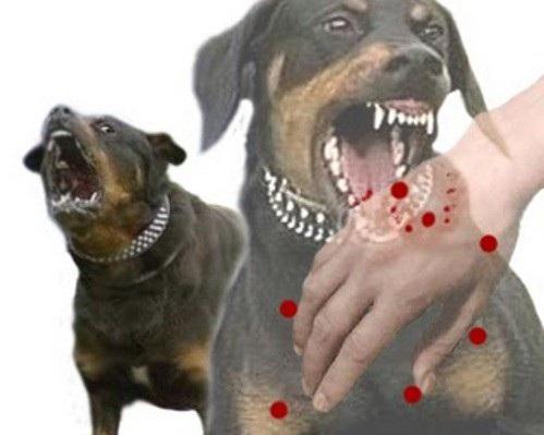 Nam thanh niên chết tức tưởi vì đánh chó sau khi bị cắn - 1