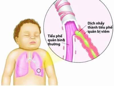 Do dịch nhầy tiết ra khi bị viêm tiểu phế quản khiến trẻ ho, khó thở.