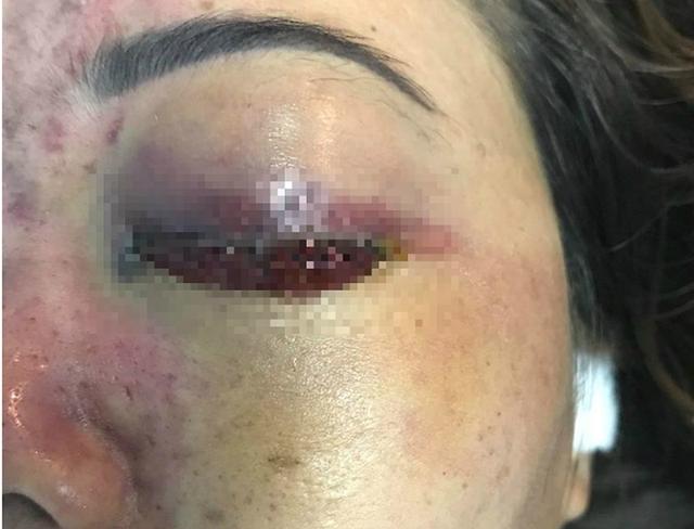 Cô gái bị biến chứng mù mắt sau tiêm filler ở TP Hồ Chí Minh.