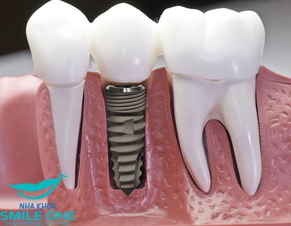 """Cấy ghép Implant dựa trên nguyên lý """"bám dính sinh học"""""""