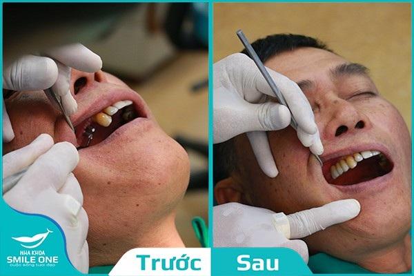 Bệnh nhân Thọ (49 tuổi) trước và sau khi cấy ghép Implant
