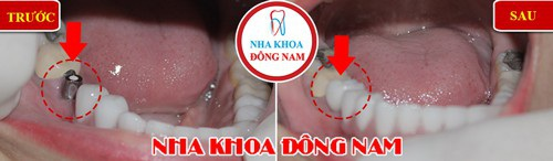 Bệnh nhân trồng răng Implant ở vị trí răng nhai tại Nha Khoa Đông Nam