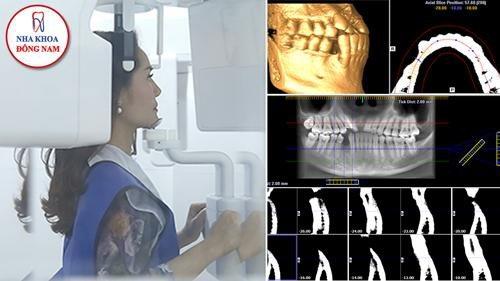 Chụp CT3D ConeBeam để đánh giá mức độ tiêu/thiếu xương trước khi thực hiện