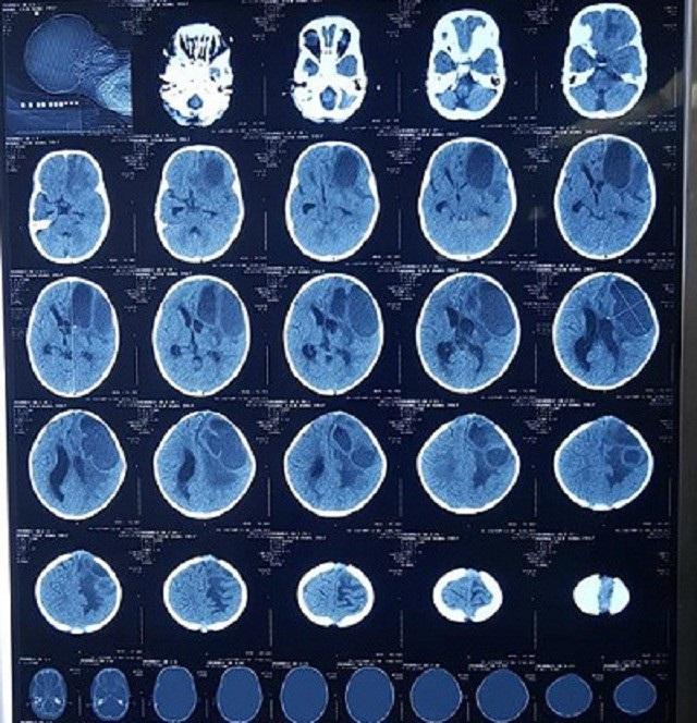 Hình ảnh chụp CT bệnh nhân áp xe não. (Ảnh: BV Hữu nghị VIệt Nam - Cu Ba Đồng Hới)