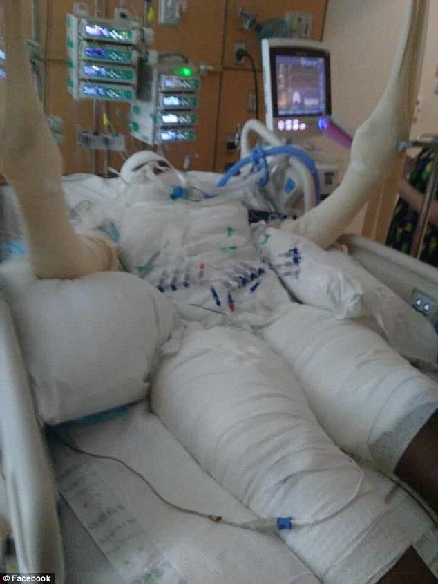 Timiyah bị bỏng đến 49% cơ thể và sẽ phải trải qua nhiều ca phẫu thuật trong tương lai