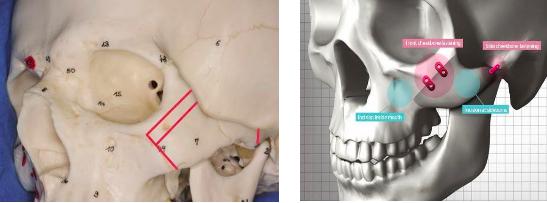 Kĩ thuật cắt xương High- L Osteotomy