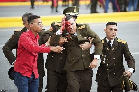 Hình ảnh binh sĩ Venezuela bị thương trong vụ ám sát hụt. Ảnh: AP