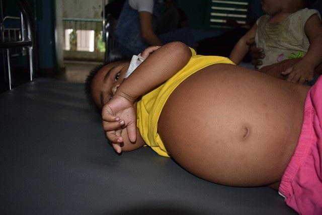 Cháu Son bị viêm thận, bể thận mãn có tắc nghẽn, theo dõi viêm đài bể thận và còn phải điều trị lâu dài