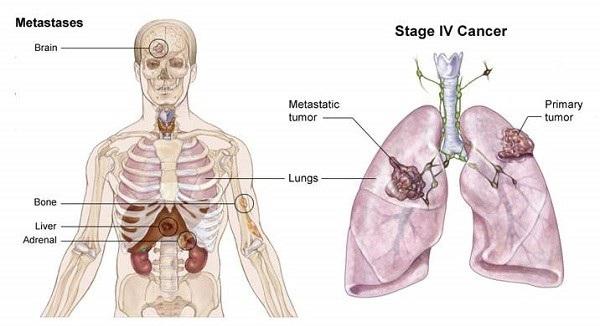 Ung thư phổi thường được phát hiện khi đã ở giai đoạn nặng, tế bào ung thư đã di căn