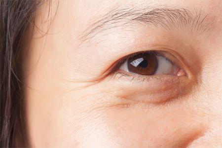Mí mắt sụp già nua và bọng mỡ mắt khiến nhiều chị em già trước tuổi