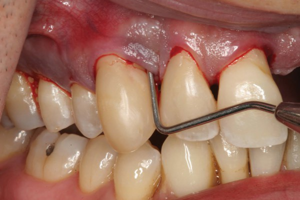 Tình trạng chảy máu chân răng không được điều trị có thể gây nên những hiểm họa cho răng miệng.