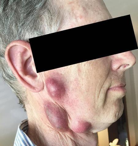 Những khối u đáng sợ trên mặt và cổ bệnh nhân