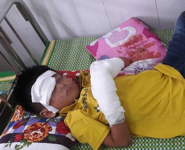 Bệnh nhi T.X.H sau khi được sơ cứu, chuyển xuống Bệnh viện Sản Nhi Nghệ An với hai bàn tay dập nát và khuôn mặt bị tổn thương (ảnh N.Thương)