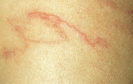 Những đường ngoằn ngoèo trên da do giun lươn.