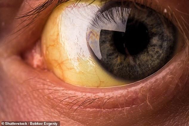 Vàng da hoặc mắt có thể là triệu chứng của tình trạng nghiêm trọng hơn