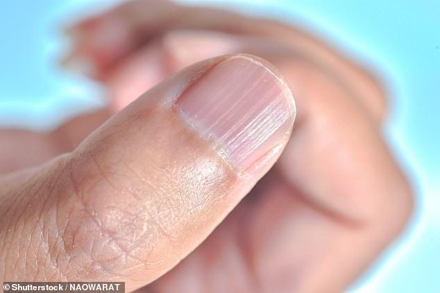 Bản thân các vệt sọc ở móng tay không có gì quá lo ngại về sức khỏe nhưng nếu không được điều trị, nó có thể gây vấn đề về xã hội