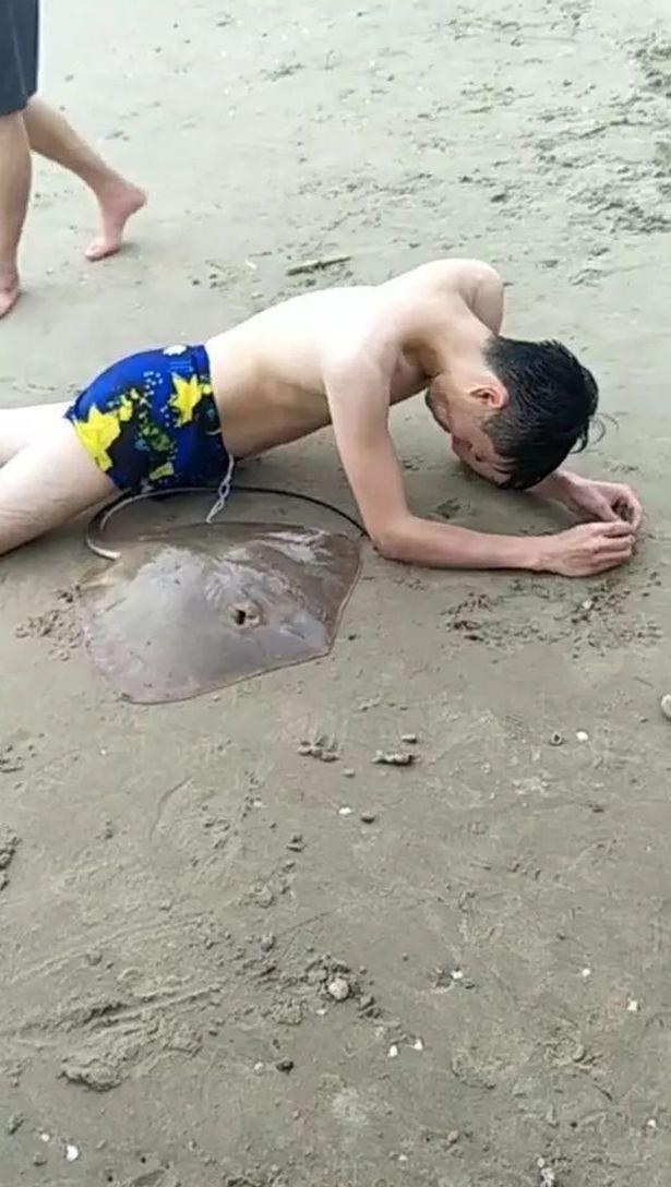 Nạn nhân đau đớn vì bị gai cá đuối đâm trúng phần nhạy cảm