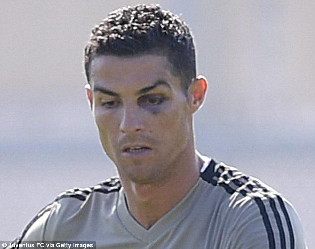 C.Ronaldo tập luyện với một bên mắt bầm tím - 2