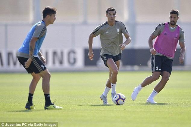 C.Ronaldo tập luyện với một bên mắt bầm tím - 3