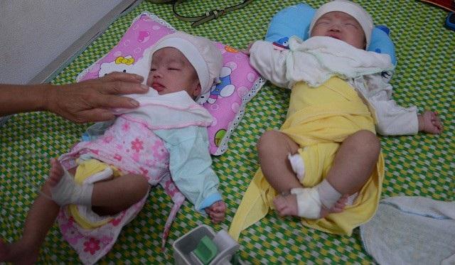 Thương 2 bé song sinh mất mẹ khi chưa đầy tháng tuổi - 1