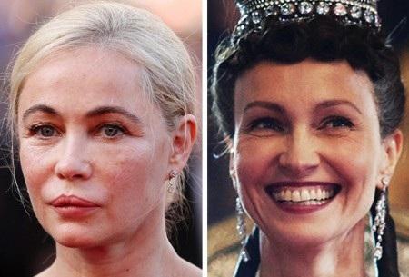 Rõ ràng, phẫu thuật thẩm mỹ cũng chẳng thể giúp Emmanuelle Béart níu kéo tuổi xuân và thậm chí còn khiến cho nữ diễn viên người Pháp mất luôn cả nét đẹp tự tin giống như ngôi sao cùng tuổi Ingeborga Dapkūnaitė