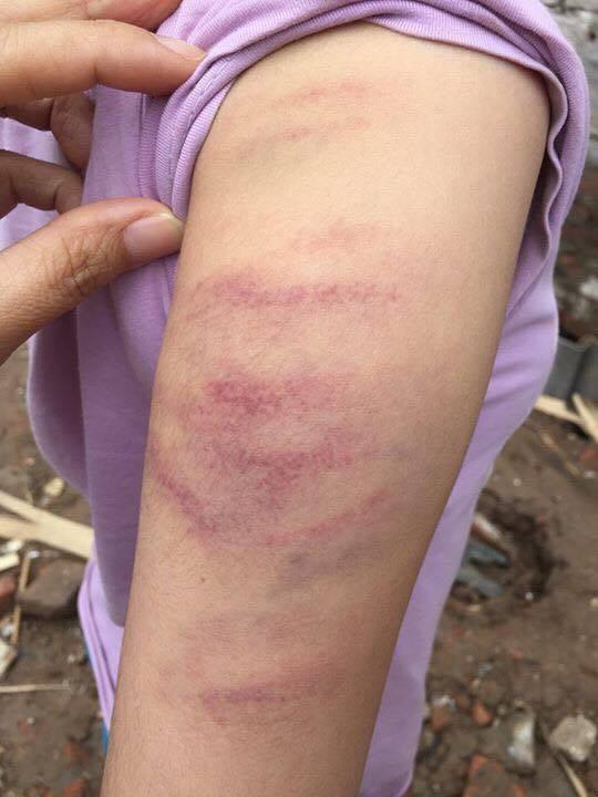 Một học sinh ở Trường tiểu học Mễ Trì, Từ Liêm, Hà Nội bị giáo viên đánh bầm tay vì không làm đủ bài tập