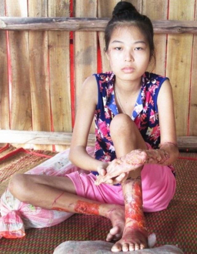 Căn bệnh viêm da của em Trương Kiều Diễm cách đây nhiều năm trước.
