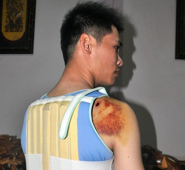 Tường dùng súng bắn trọng thương nam thanh niên sau khi người này cãi nhau với bố mình