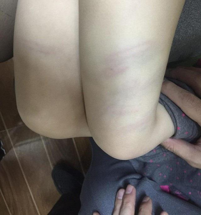 Bé gái ở Thanh Hóa bị cô giáo dùng đũa đánh bầm đùi