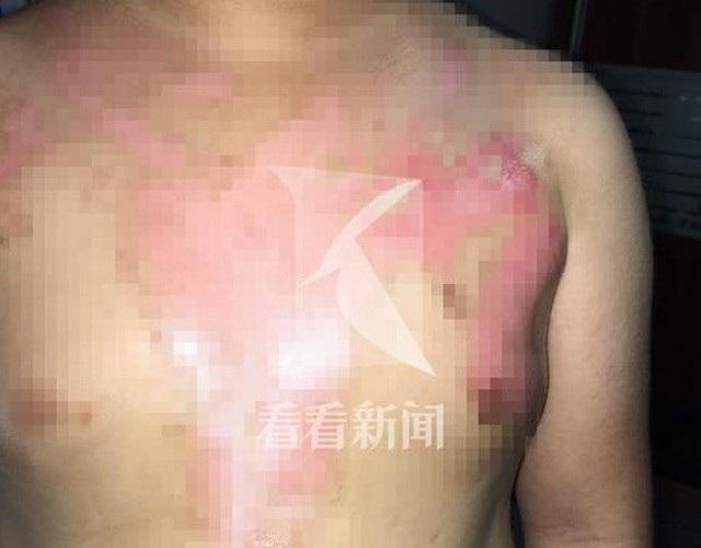 Cậu bé với vết bỏng cấp độ 3 trên ngực sau khi gặp tai nạn trong nhà hàng