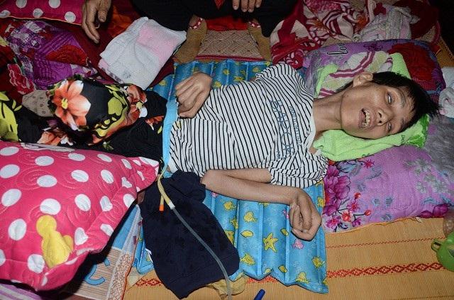 Sự sống mong manh của cô gái trẻ mắc căn bệnh hiếm gặp - Ảnh 7.