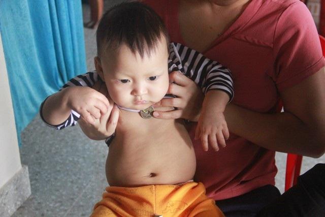Tiếng khóc xé lòng của bé trai 15 tháng tuổi đã sớm mắc bệnh u gan - Ảnh 5.