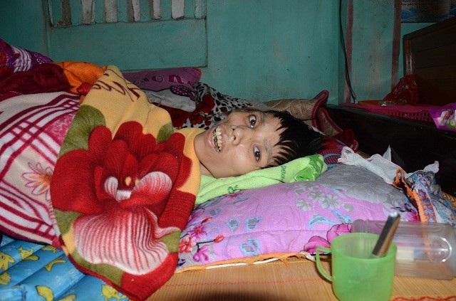 Sự sống mong manh của cô gái trẻ mắc căn bệnh hiếm gặp - Ảnh 3.