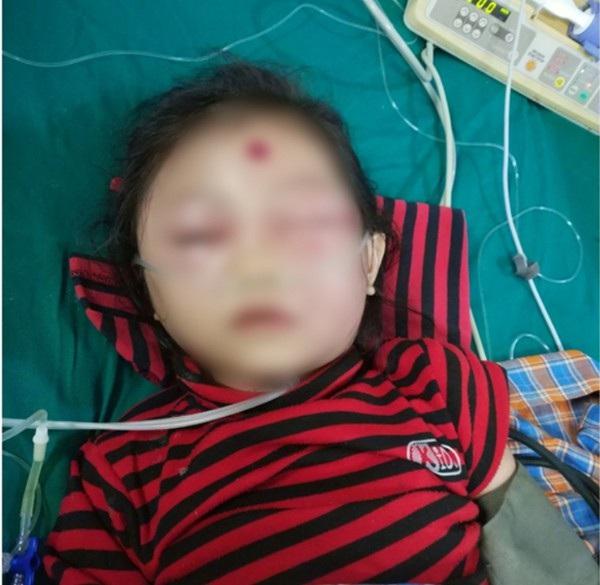 Bé gái 6 tuổi ở Phú Thọ suýt mất mạng chỉ vì nốt mụn nhỏ trên mặt - Ảnh 1.